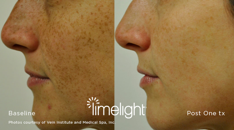 IPL (Intense Pulsed Light) Treatment